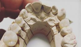 IPS Inlay mit Zirkon Abutment